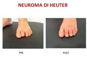 neuroma di Heuter