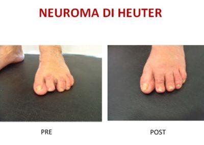 15 neuroma heuter