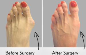 prima e dopo l'operazione di alluce valgo