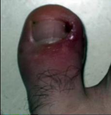 unghia incarnita infetta